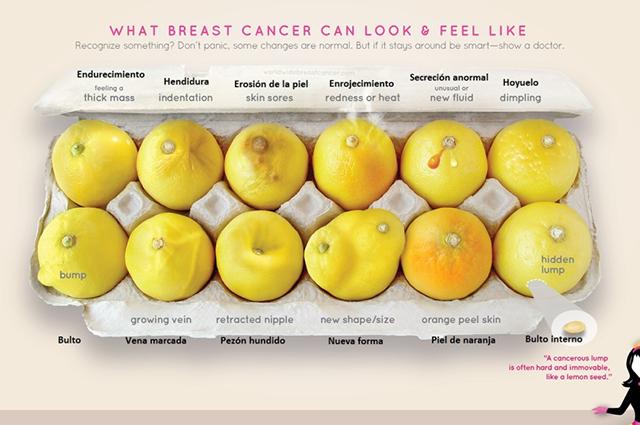 Campaña 'Doce limones'
